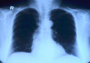 zapalenie płuc