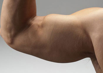 nadciągnięty mięśnia