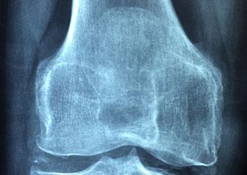 osteoporoza-objawy i leczenie